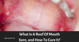 What Is A Roof Of Mouth Sore, and How To Cure It?